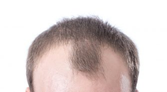 What causes a receding hairline