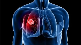 5 Serious Health Diseases Caused by Asbestos
