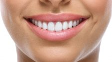 Cosmetic Dentistry- Giving People A Reason To Smile