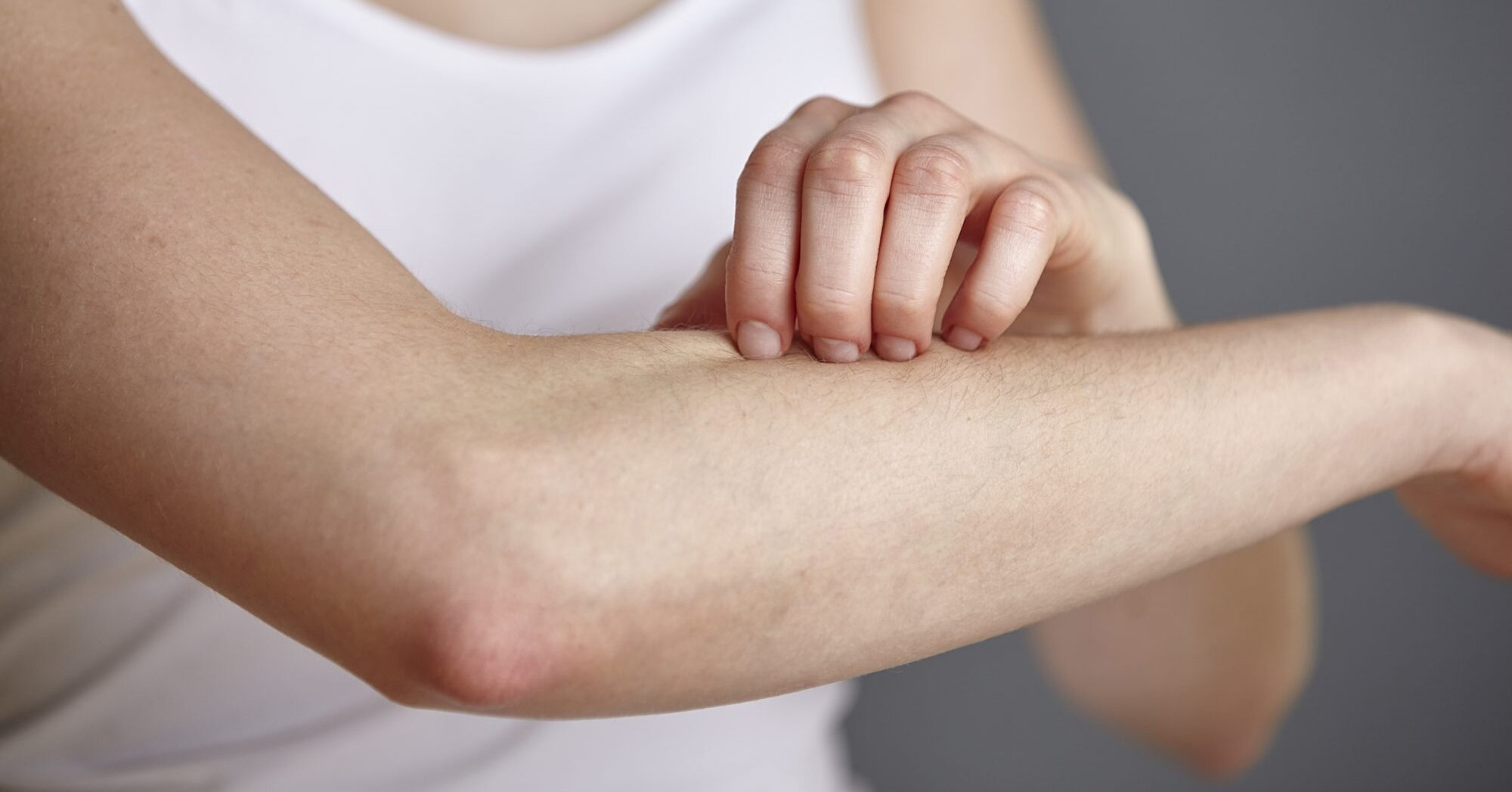 Watch Out for These 5 Culprits That Make Irritated Skin Worse