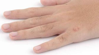 5 Advantages of Wart Removal Sydney